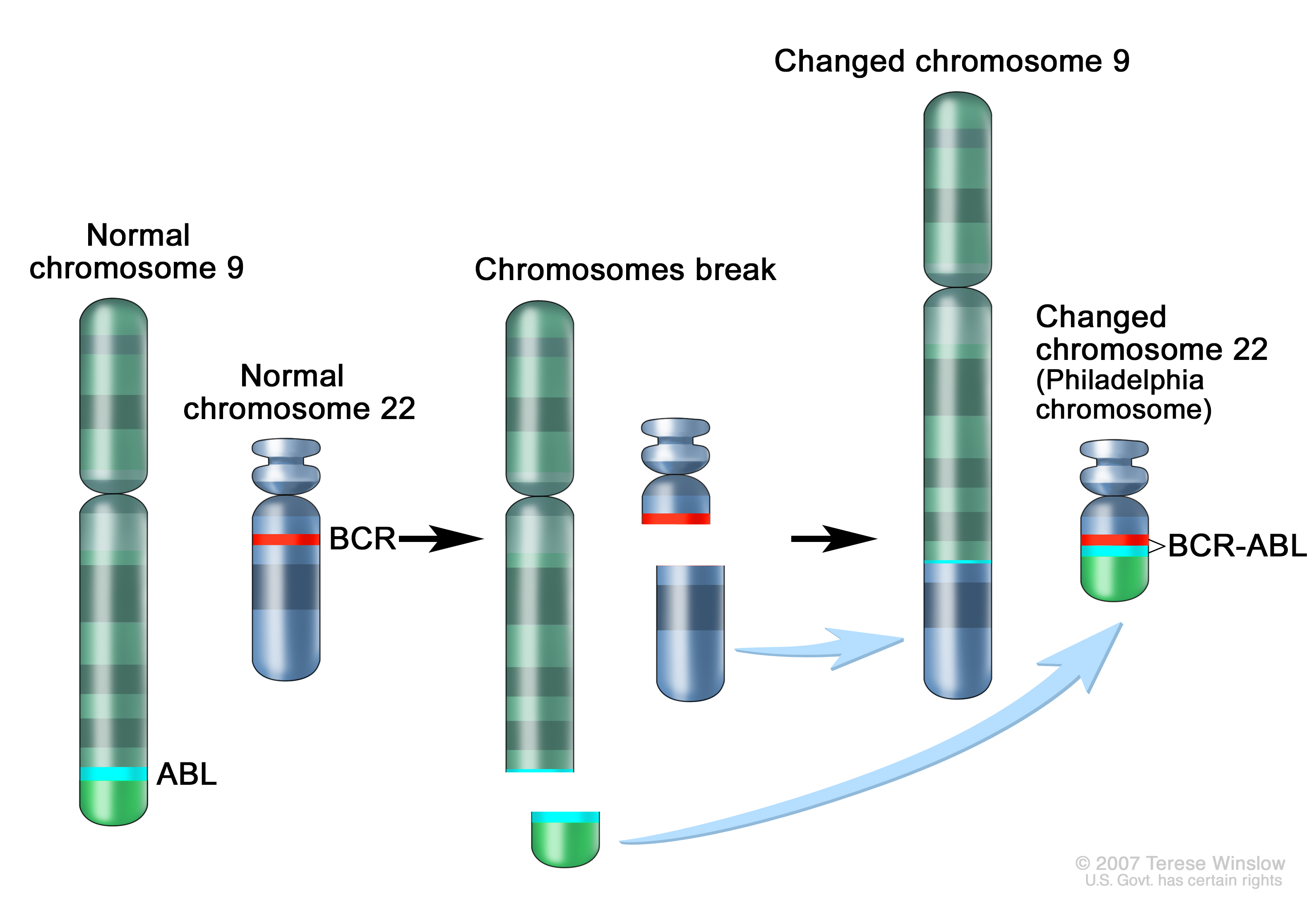 Philadelphia chromosome; three-panel drawing shows a piece of chromosome 9 and a piece of chromosome 22 breaking off and trading places, creating a changed chromosome 22 called the Philadelphia chromosome. In the left panel, the drawing shows a normal chromosome 9 with the ABL gene and a normal chromosome 22 with the BCR gene. In the center panel, the drawing shows chromosome 9 breaking apart in the ABL gene and chromosome 22 breaking apart below the BCR gene. In the right panel, the drawing shows chromosome 9 with the piece from chromosome 22 attached and chromosome 22 with the piece from chromosome 9 containing part of the ABL gene attached. The changed chromosome 22 with the BCR-ABL gene is called the Philadelphia chromosome.