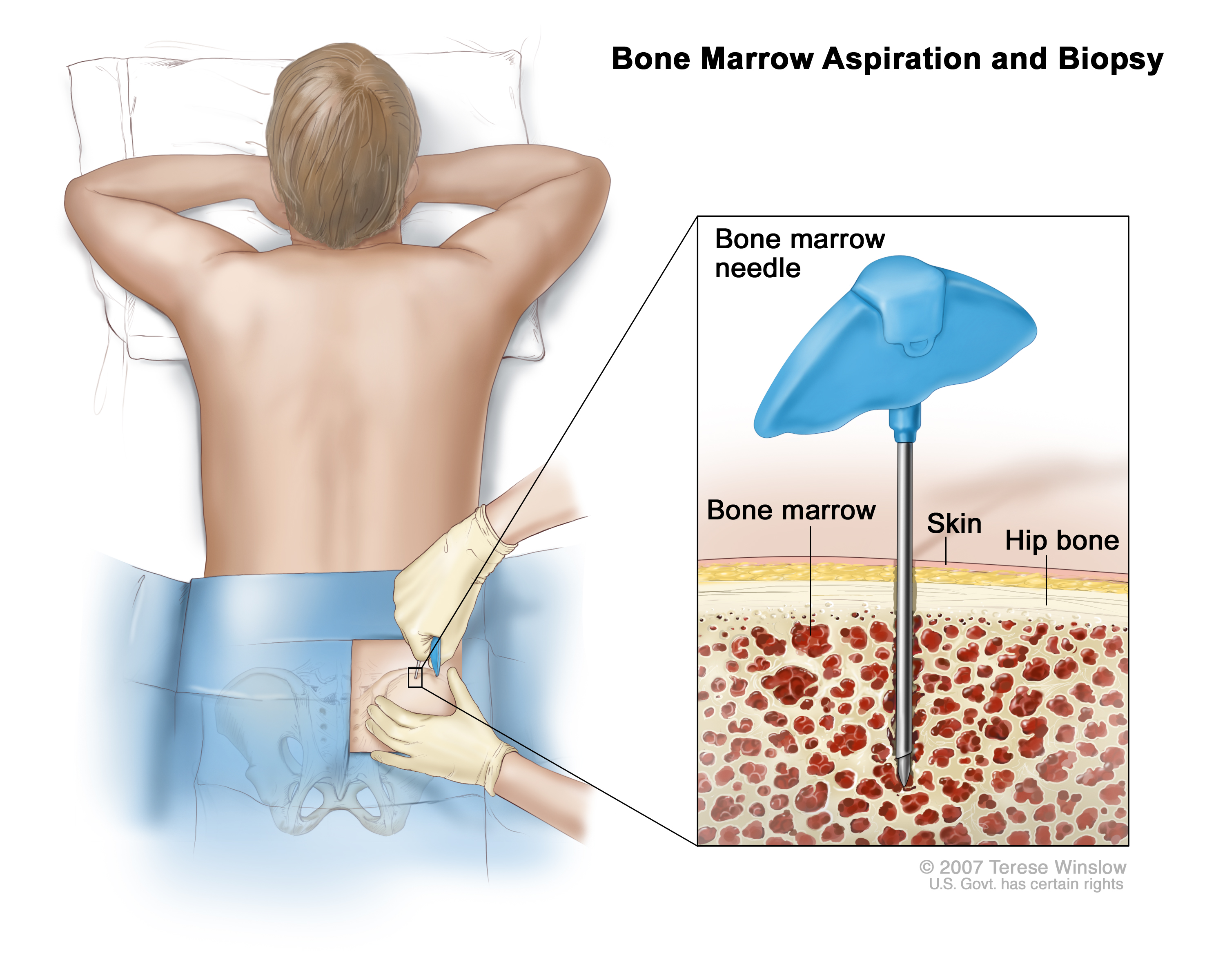 Bone marrow aspiration and biopsy; drawing shows a patient lying face ...