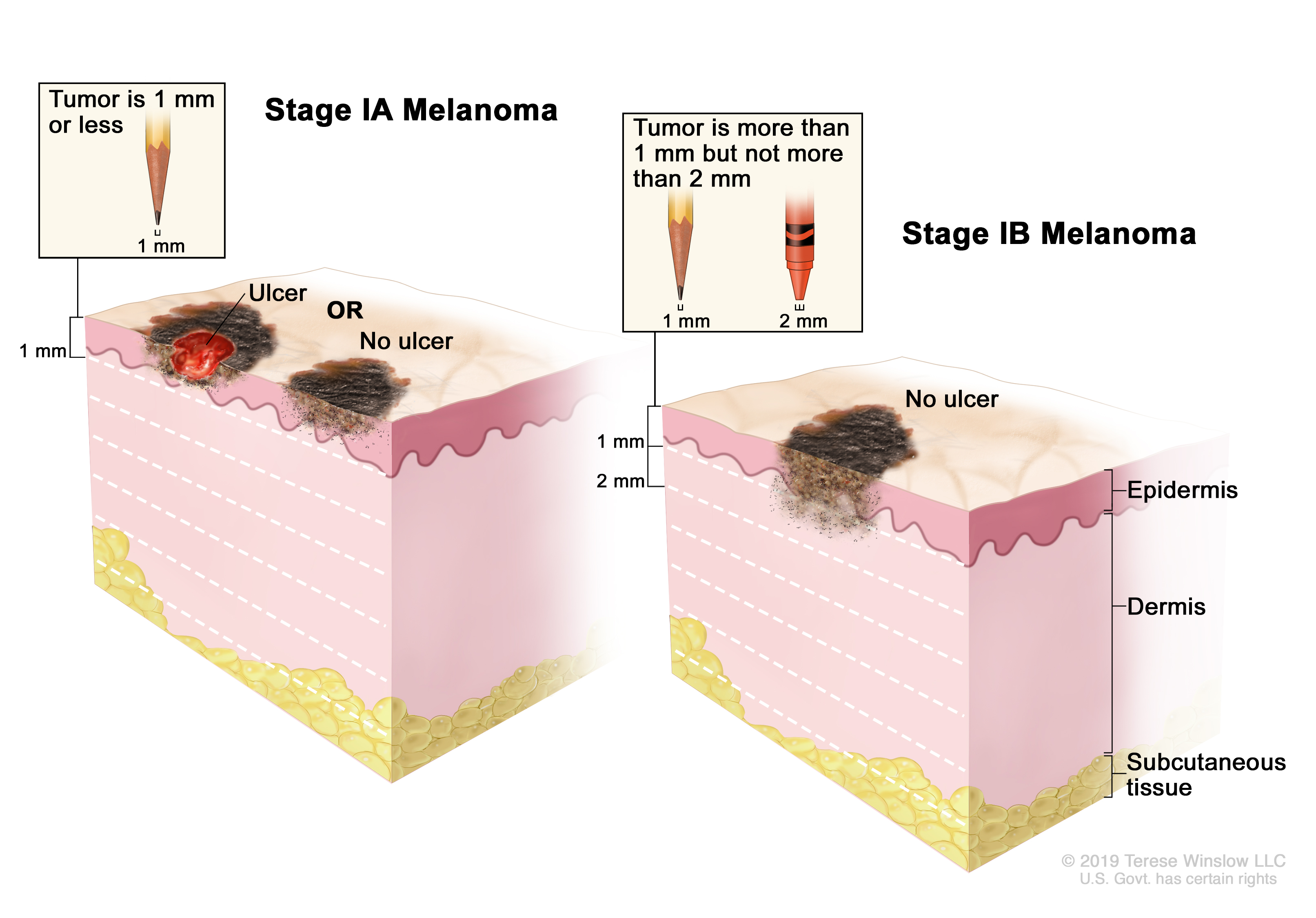 Two-panel drawing of stage I melanoma; the panel on the left shows a stage IA tumor that is not more than 1 millimeter thick, with ulceration (a break in the skin) and without ulceration. The panel on the right shows a stage IB tumor that is more than 1 but not more than 2 millimeters thick, without ulceration. Also shown are the epidermis (outer layer of the skin), the dermis (inner layer of the skin), and the subcutaneous tissue below the dermis.