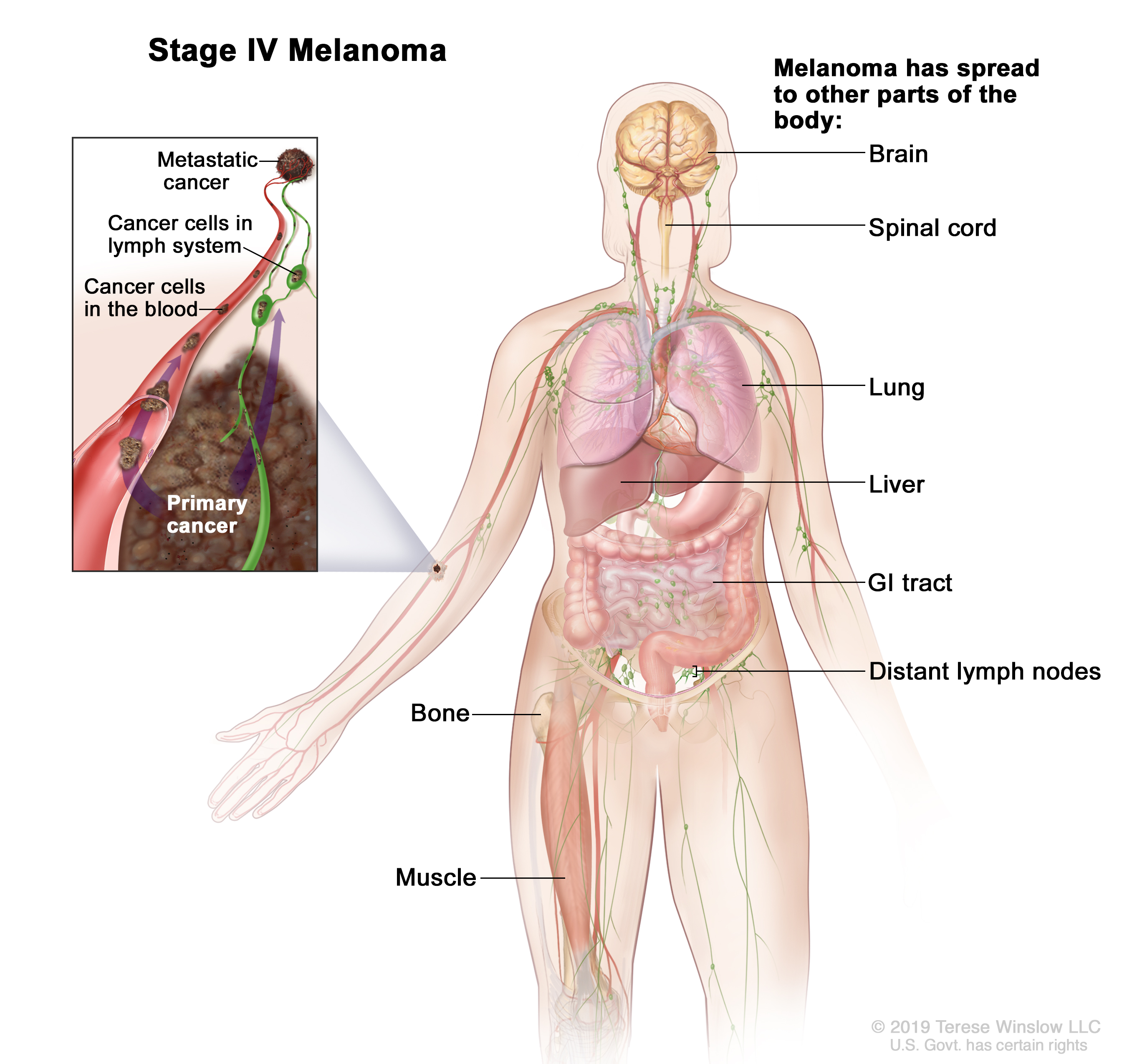 Stage IV melanoma; drawing shows other parts of the body where melanoma may spread, including the brain, spinal cord, lung, liver, gastrointestinal (GI) tract, bone, muscle, and distant lymph nodes. An inset shows cancer cells spreading through the blood and lymph system to another part of the body where a metastatic tumor has formed.