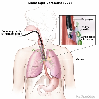 Endoscopic ultrasound-guided fine-needle aspiration biopsy; drawing shows an endoscope with an ultrasound probe and biopsy needle inserted through the mouth and into the esophagus. Drawing also shows lymph nodes near the esophagus and cancer in one lung. Inset shows the ultrasound probe locating the lymph nodes with cancer and the biopsy needle removing tissue from one of the lymph nodes near the esophagus.