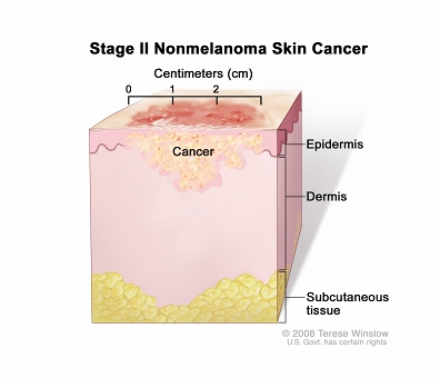 Stage II nonmelanoma skin cancer; drawing shows a tumor that is more than 2 centimeters wide that has spread from the epidermis (outer layer of the skin) into the dermis (inner layer of the skin). Also shown is the subcutaneous tissue below the dermis.