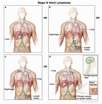 Stage IV adult non-Hodgkin lymphoma; drawing shows cancer in the liver, the left lung, and in one lymph node group below the diaphragm. The brain and pleura are also shown. One inset shows a close-up of cancer spreading through lymph nodes and lymph vessels to other parts of the body. Lymphoma cells containing cancer are shown inside one lymph node. Another inset shows cancer cells in the bone marrow.