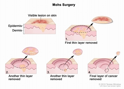 Mohs surgery; drawing shows a visible lesion on the skin. The pullout shows a block of skin with cancer in the epidermis (outer layer of the skin) and the dermis (inner layer of the skin). A visible lesion is shown on the skin's surface. Four numbered blocks show the removal of thin layers of the skin one at a time until all the cancer is removed.