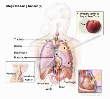 Stage IIIA non-small cell lung cancer (3). Drawing shows cancer in the heart, major blood vessels that lead to or from the heart, the trachea, esophagus, sternum, and carina; the diaphragm is also shown. Inset shows cancer that has spread from the lung, through the membrane around the heart, into the heart.
