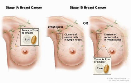 Stage I breast cancer. Drawing shows stage IA on the left; the tumor is 2 cm or smaller and has not spread outside the breast. Drawings in the middle and on the right show stage IB. In the drawing in the middle, no tumor is found in the breast, but small clusters of cancer cells are found in the lymph nodes. In the drawing on the right, the tumor is 2 cm or smaller and small clusters of cancer cells are found in the lymph nodes.