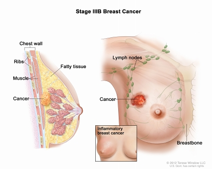 Stage IIIB breast cancer. The drawing on the left is a cross section of the breast showing  that cancer has spread to the chest wall. The ribs, muscle, and fatty tissue are also shown. The drawing on the right shows the tumor has spread to the skin of the breast. An inset shows inflammatory breast cancer.