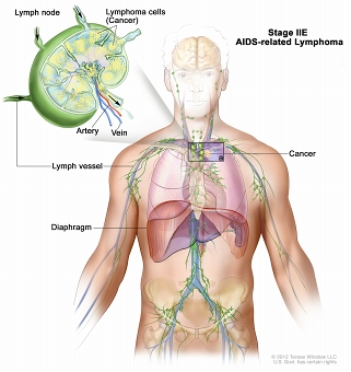 Stage IIE AIDS-related lymphoma; drawing shows cancer in one lymph node group above the diaphragm and in the left lung. An inset shows a lymph node with a lymph vessel, an artery, and a vein. Lymphoma cells containing cancer are shown in the lymph node.
