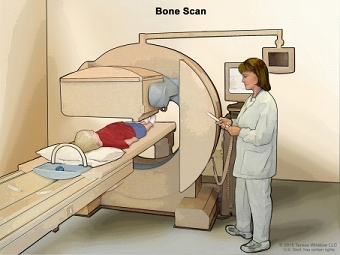 Bone scan; drawing shows a child lying on a table that slides under the scanner, a technician operating the scanner, and a computer monitor that will show images made during the scan.