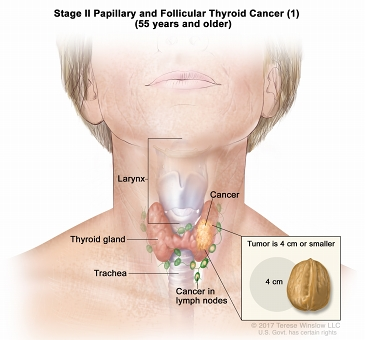 Stage II papillary and follicular thyroid cancer (1) in patients 55 years and older; drawing shows cancer in the thyroid gland and nearby lymph nodes. The tumor is 4 centimeters or smaller. An inset shows 4 centimeters is about the size of a walnut.  Also shown are the larynx and trachea.
