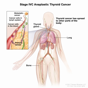 Stage IVC anaplastic thyroid cancer; drawing shows other parts of the body where thyroid cancer may spread, including the lung and bone. An inset shows cancer cells spreading from the thyroid, through the blood and lymph system, to another part of the body where metastatic cancer has formed.