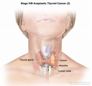 Stage IVB  anaplastic thyroid cancer (2); drawing shows cancer in the thyroid gland and nearby muscles in the neck. The lymph nodes are also shown.
